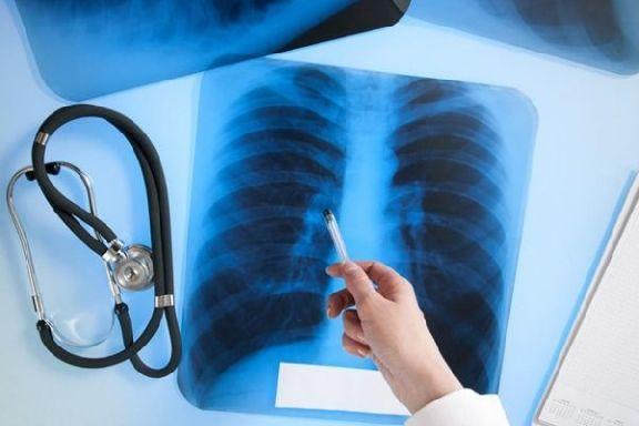 В Тамбовской области в двух исправительных колониях выявлены недоработки медиков