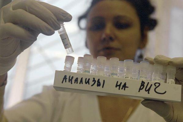 В Тамбовской области растет заболеваемость ВИЧ-инфекцией