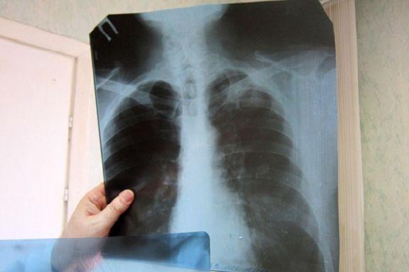 В Сампурском районе принудительно госпитализируют больного туберкулезом