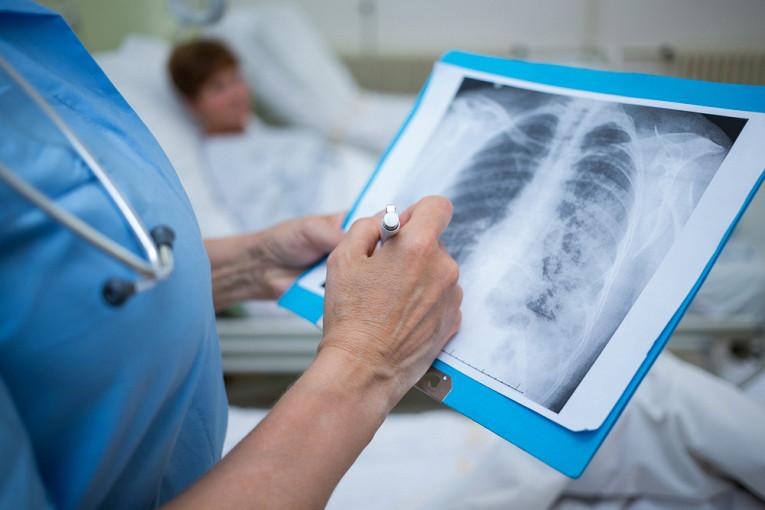 Число больных пневмонией тамбовчан выросло почти в 4 раза