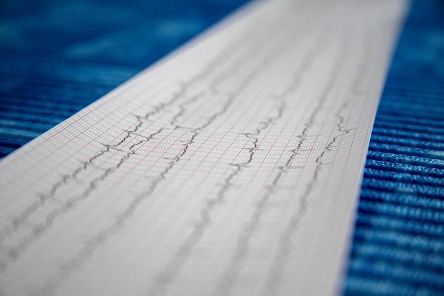 Кардиолог призвал следить за сердцем после выздоровления от COVID-19