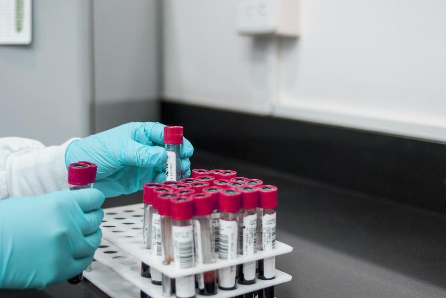 Врач назвал повышающую на 90% риск смерти от коронавируса привычку